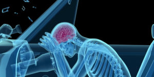 car accident lawyers - brain unjury